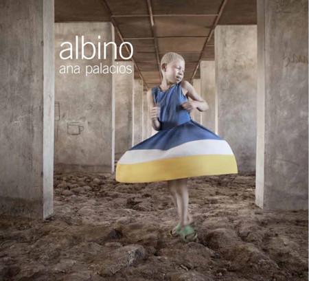 Albino Ana Palacios 1