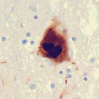 La eliminación del apéndice reduce el riesgo de enfermedad de Parkinson