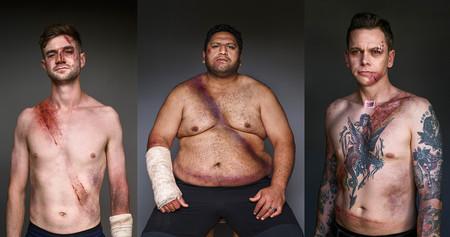 'Belted Survivors', mostrando las huellas que deja el cinturón de seguridad en caso de accidente para concienciar de su uso