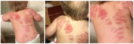 Recoge a su bebé en la guardería y la encuentra llena de mordeduras: qué hacer ante un caso así