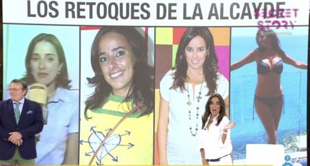 Carmen Alcayde desvela todos sus retoques estéticos en 'Sálvame'