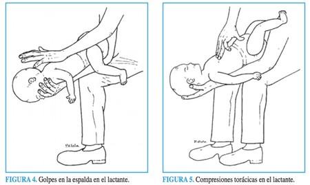 bebe-maniobras-reanimacion