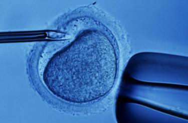 Primeros gemelos nacidos por reimplantación de tejido ovárico después de un cáncer