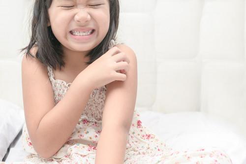 Herpes zóster en niños: por qué aparece y cómo se trata