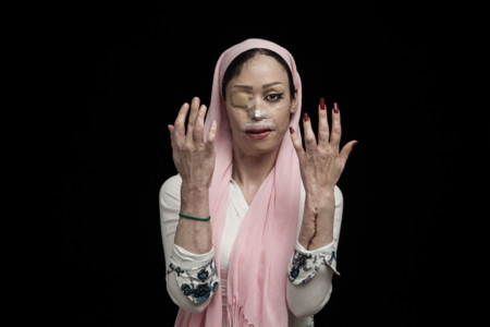 Shirin Mohamadi 18 Years Old From Tehran Said No To Her Suitor He Attacked Her With Acid On The First Day Of The New Year In 2012 Shirin Lost Her Right Eye Nose One Of Her Ears Her Mouth Was Severely Damaged And Other Par