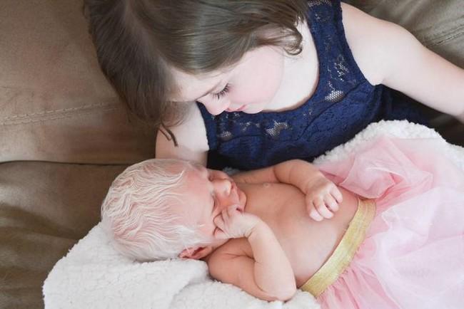 """""""Es un hada de las nieves"""": la tierna reacción de una niña de cinco años al conocer a su hermana con albinisimo"""