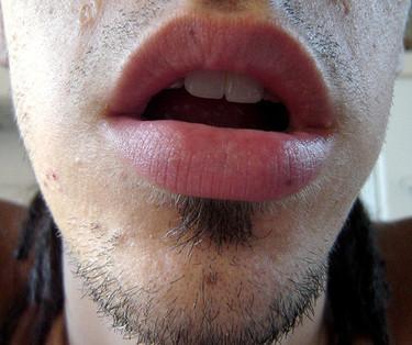 El origen de la halitosis cuando la alimentación no causa el mal aliento
