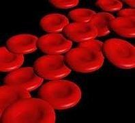 Anemia sideropénica