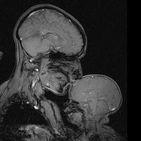 La historia tras la resonancia magnética que mostró a una madre durmiendo a su bebé