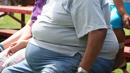 Una persona obesa no es una persona bien nutrida