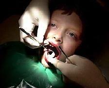 Se le ha roto un diente al niño