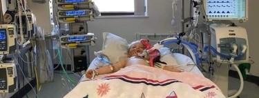 Una niña de cinco años que había superado el coronavirus, lucha por su vida tras contraer la enfermedad de Kawasaki