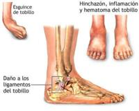 El esguince de tobillo (I): qué es y tipos según gravedad