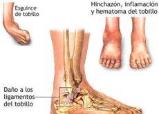 hematoma subiendo la pierna