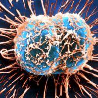 El cáncer tiene un nuevo combatiente desarrollado en México