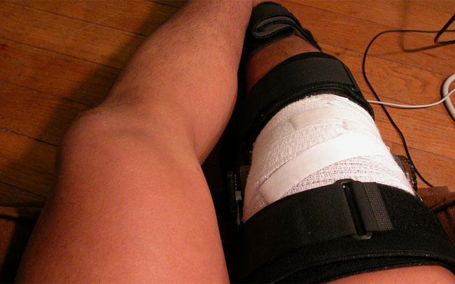 rodilla lesionada
