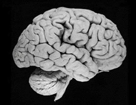 Escaneando la inteligencia