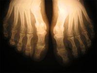 Un estudio da un paso más sobre la osteoporosis en los hombres