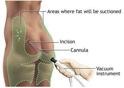 La liposucción o el camino fácil para adelgazar