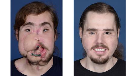 El nuevo rostro de Cameron Underwood: el antes y el después del trasplante facial más avanzado del mundo
