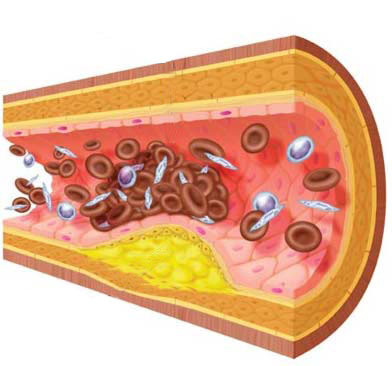 Dieta para prevenir la Arterioesclerosis