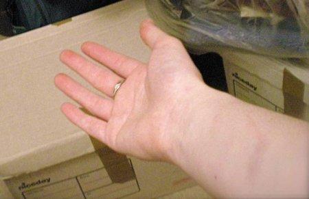 Pequeñas marcas rojas en la piel, ¿a qué se deben?