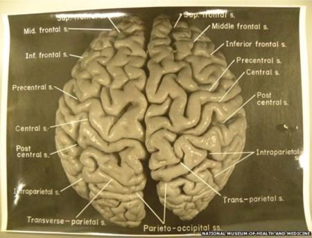 82399975 Fig01 Brain 624