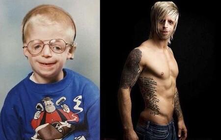 """Sus padres le abandonaron al nacer por su """"cara fea"""": hoy es un ejemplo para los niños que sufren su rara enfermedad"""