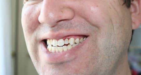 Un ejercicio para fortalecer la mandíbula y aliviar tensiones