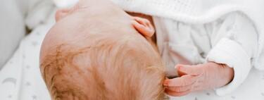 ¿Por qué a mi bebé se le cae el pelo y tiene calvas en la cabeza?