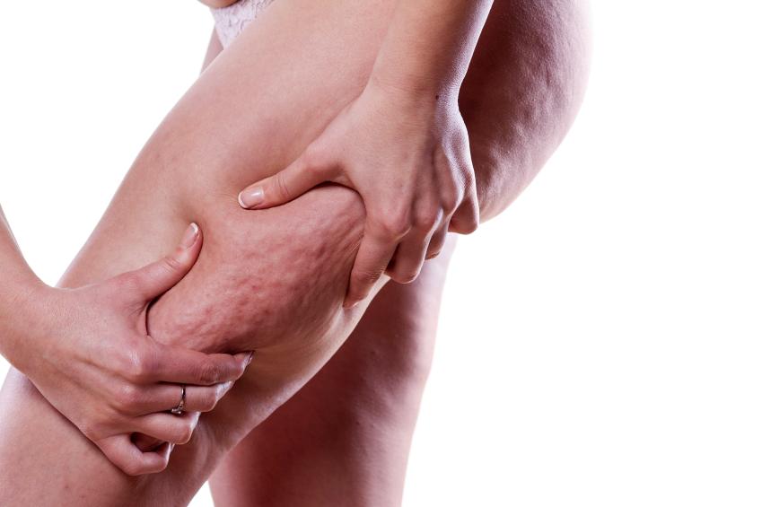 grupos especializados grasa localizada celulitis