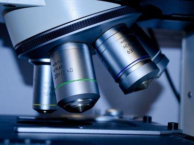 Una resolución inédita en microscopio nos permite ver reacciones moleculares