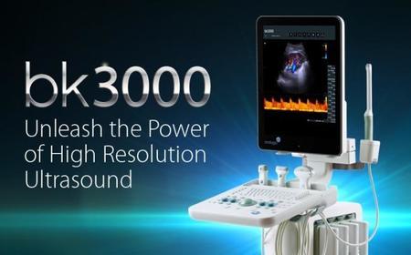 Los gráficos embebidos AMD Radeon HD7850 llevan los ultrasonidos a otro nivel