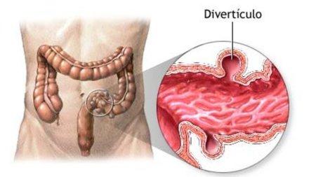 Diverticulos: ¿qué son y cómo adaptar la dieta a su presencia?