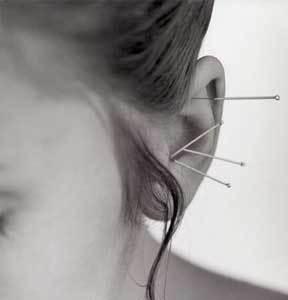 La acupuntura, una ayuda para perder peso