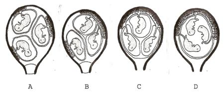 embarazo-gemelar-triple