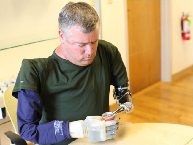 Revolutionizing Prosthetics1