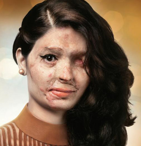Reshma Khureshi la joven desfigurada con ácido desfilará durante la NY Fashion Week