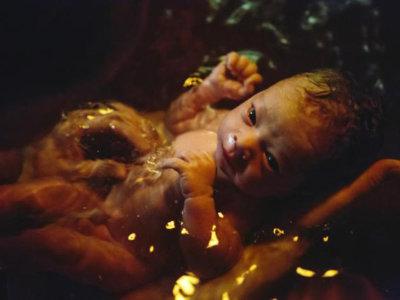El parto en el agua no es más peligroso que el resto de partos, señala un estudio