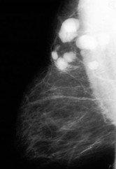 Más datos sobre el cáncer de mama