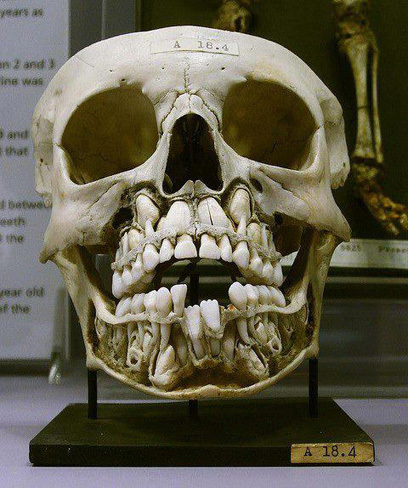 Cráneo del bebé con dientes saliendo