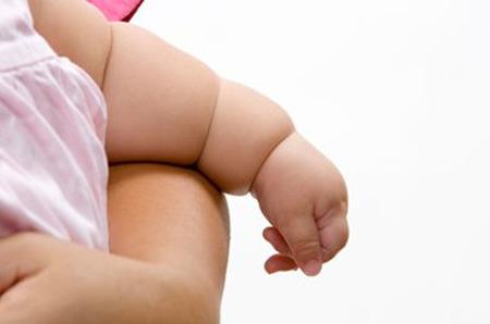 Nacer por cesárea aumenta el riesgo de obesidad infantil