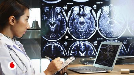 rayos t escaner cerebral