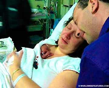 El milagro de un bebé de 567 gramos que sobrevivió gracias al abrazo de su madre