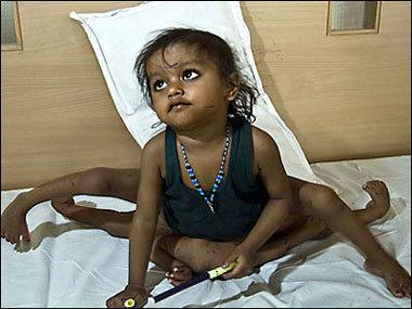 Una niña-diosa con 4 brazos y 4 piernas. Los casos de gemelos-siameses.