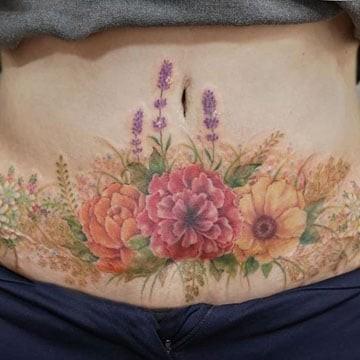 Tatuajes-Cesareas