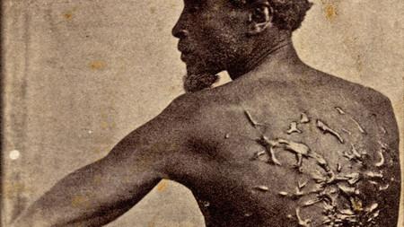 Whipping Scars American Slave Gordon 910x512