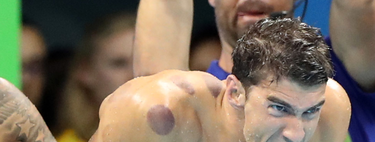 ¿Por qué los mejores deportistas del mundo se están haciendo moratones en la piel?