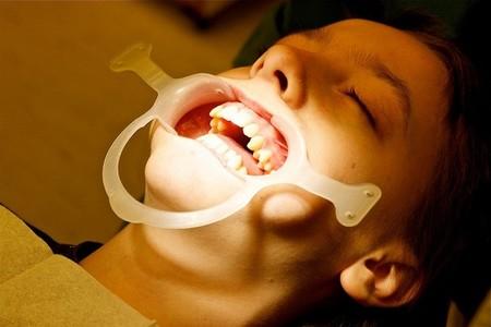 Casi la mitad de los niños españoles no acude al dentista para realizar revisiones preventivas