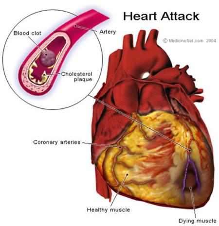 Infarto cardíaco